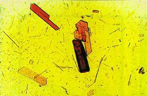 leghemoglobin.jpg