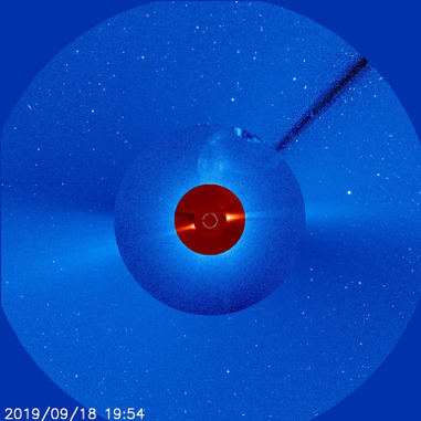 Blue BITSE coronal image